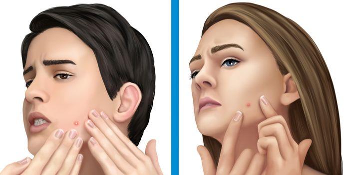 El acné se propaga de persona a persona