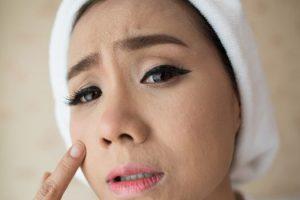 Mitos sobre el acné y algunas formas efectivas de controlarlo