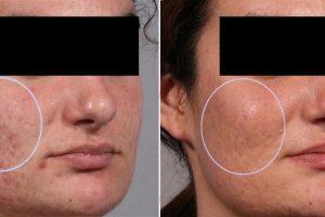 Procesos quirúrgicos comunes del acné, resultados esperados, riesgos, complicaciones