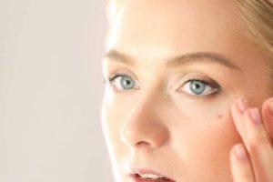 Qué causa el acné Whitehead y cómo deshacerse de él