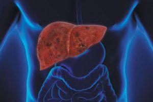 Qué no comer con enzimas hepáticas elevadas