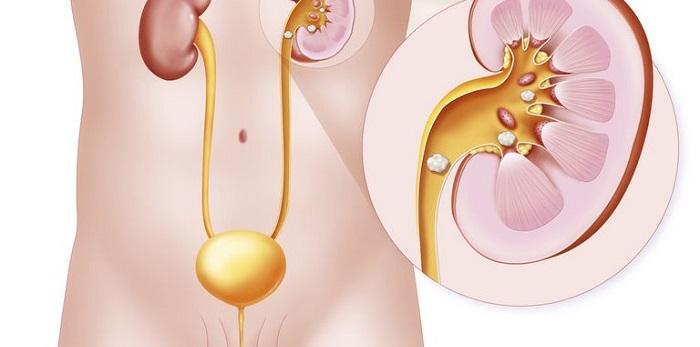 Se pueden tratar los cálculos renales sin cirugía